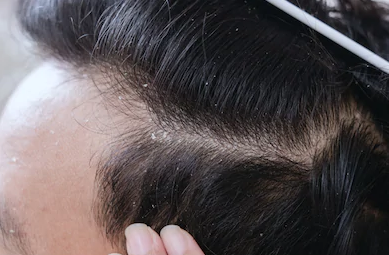 white gunk on scalp